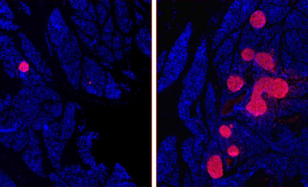 Diabète de type 1 : autorégénérer ses cellules productrices d'insuline ?