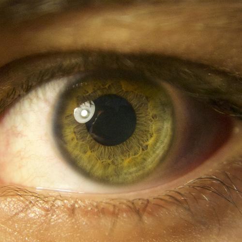 complication oeil diabète