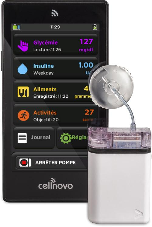 Pompe à insuline Cellnovo 2017 Gen 2